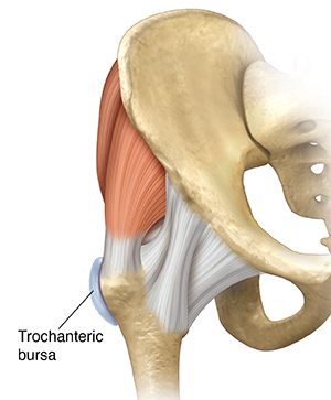 Front view of hip joint showing trochanteric bursa.