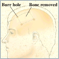 Side view of head with skull inside. Four small holes are in skull at corners of rectangle. Bone inside rectangle is removed.