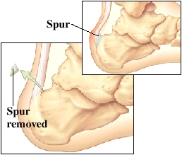 Images of spurs on back of heel and spurs removed