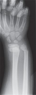 X-ray of an arm and hand showing a broken wrist